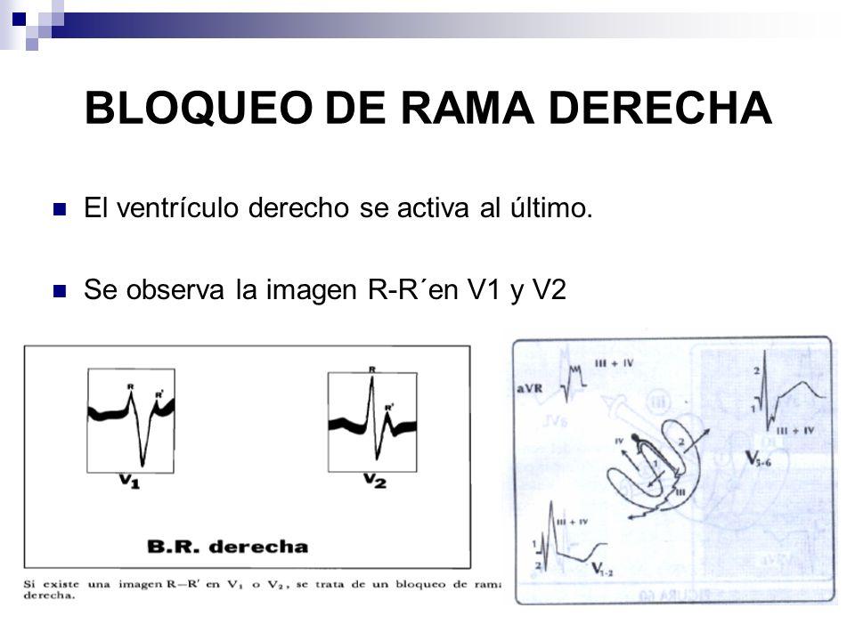 BLOQUEO DE RAMA DERECHA El ventrículo derecho se activa al último. Se observa la imagen R-R´en V1 y V2