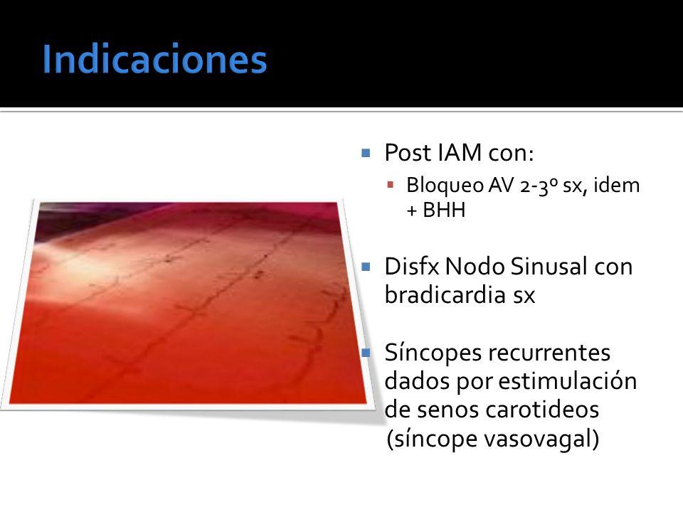 Post IAM con: Bloqueo AV 2-3º sx, idem + BHH Disfx Nodo Sinusal con bradicardia sx Síncopes recurrentes dados por estimulación de senos carotideos (sí
