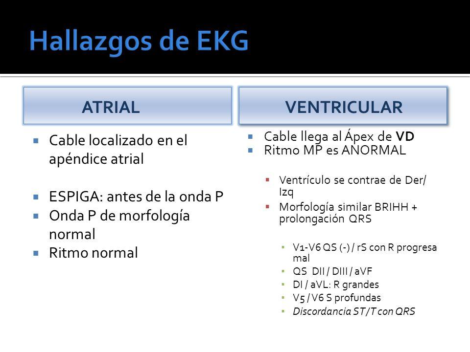 ATRIAL Cable localizado en el apéndice atrial ESPIGA: antes de la onda P Onda P de morfología normal Ritmo normal VENTRICULAR Cable llega al Ápex de VD Ritmo MP es ANORMAL Ventrículo se contrae de Der/ Izq Morfología similar BRIHH + prolongación QRS V1-V6 QS (-) / rS con R progresa mal QS DII / DIII / aVF DI / aVL: R grandes V5 / V6 S profundas Discordancia ST / T con QRS