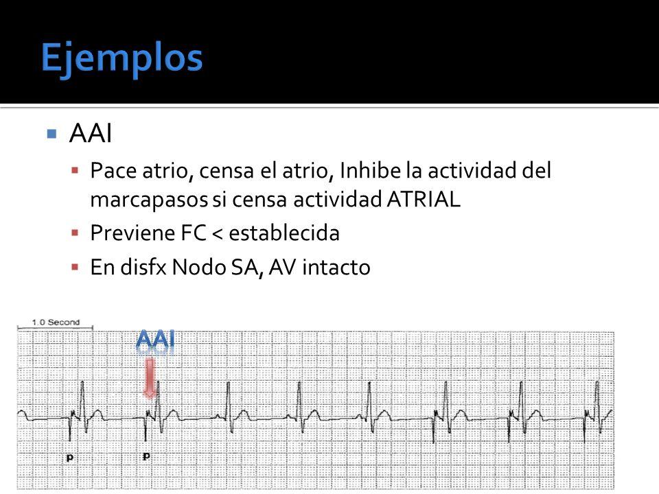 AAI Pace atrio, censa el atrio, Inhibe la actividad del marcapasos si censa actividad ATRIAL Previene FC < establecida En disfx Nodo SA, AV intacto