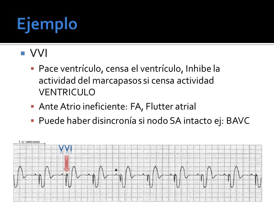 VVI Pace ventrículo, censa el ventrículo, Inhibe la actividad del marcapasos si censa actividad VENTRICULO Ante Atrio ineficiente: FA, Flutter atrial