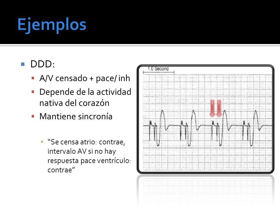 DDD: A/V censado + pace/ inh Depende de la actividad nativa del corazón Mantiene sincronía Se censa atrio: contrae, intervalo AV si no hay respuesta p