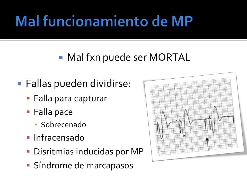Mal fxn puede ser MORTAL Fallas pueden dividirse: Falla para capturar Falla pace Sobrecenado Infracensado Disritmias inducidas por MP Síndrome de marc