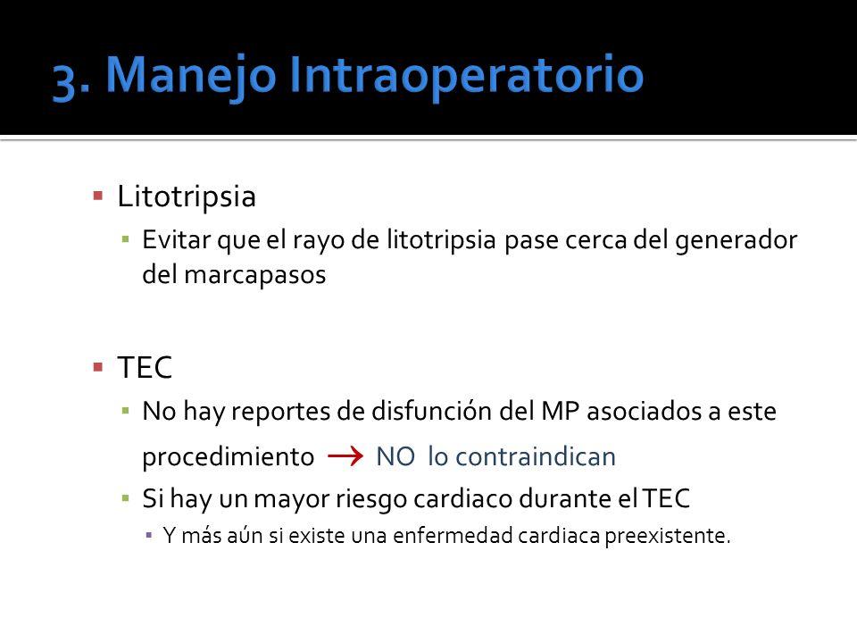 Litotripsia Evitar que el rayo de litotripsia pase cerca del generador del marcapasos TEC No hay reportes de disfunción del MP asociados a este proced