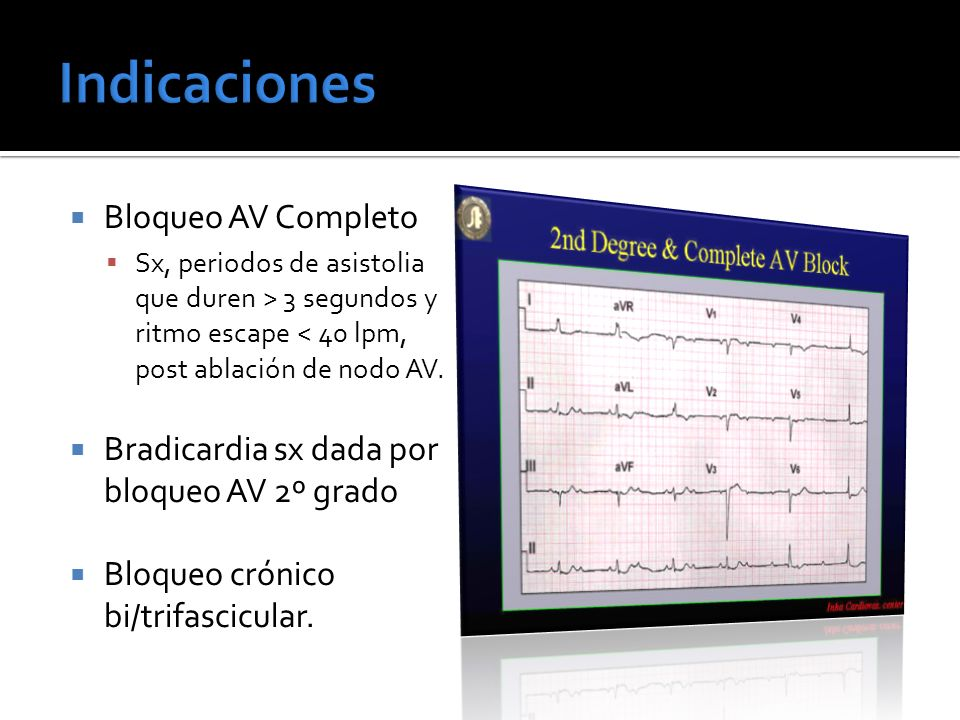 Bloqueo AV Completo Sx, periodos de asistolia que duren > 3 segundos y ritmo escape < 40 lpm, post ablación de nodo AV. Bradicardia sx dada por bloque
