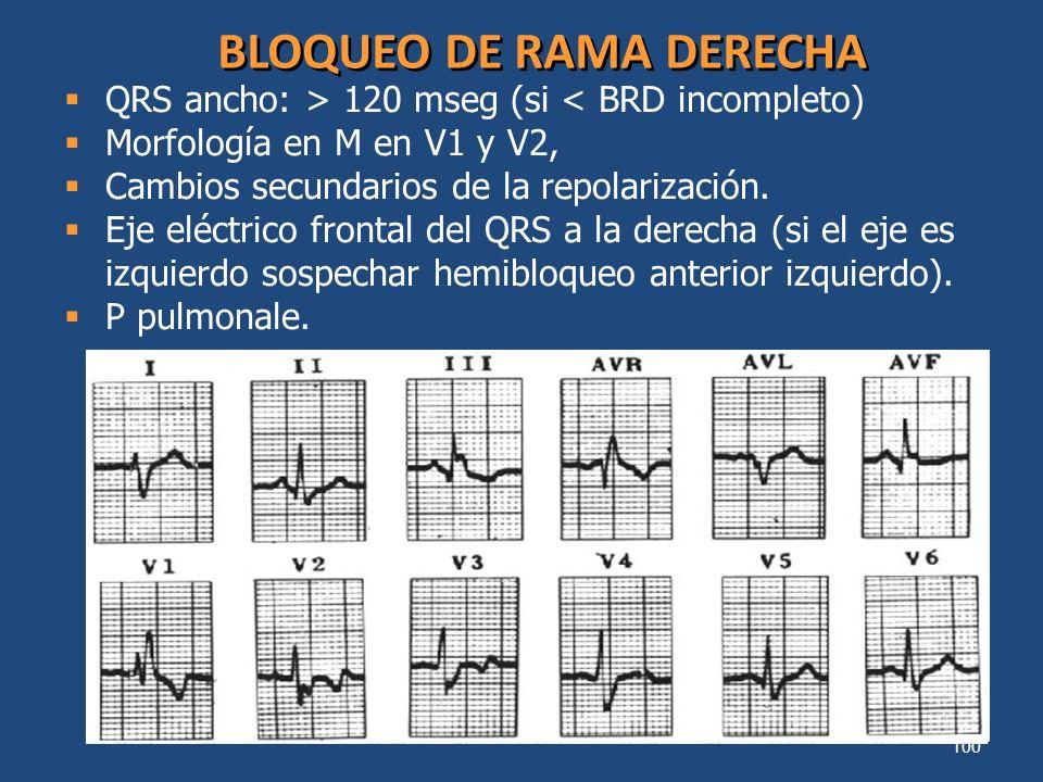 100 BLOQUEO DE RAMA DERECHA QRS ancho: > 120 mseg (si < BRD incompleto) Morfología en M en V1 y V2, Cambios secundarios de la repolarización. Eje eléc