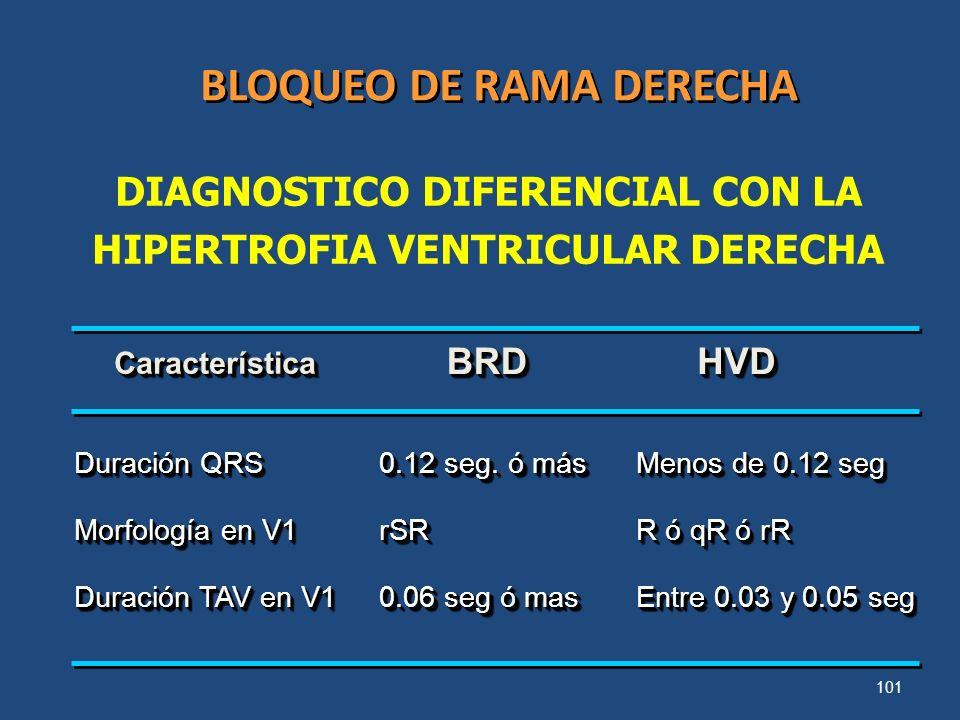 101 BLOQUEO DE RAMA DERECHA Duración QRS Morfología en V1 Duración TAV en V1 Duración QRS Morfología en V1 Duración TAV en V1 0.12 seg. ó más rSR 0.06