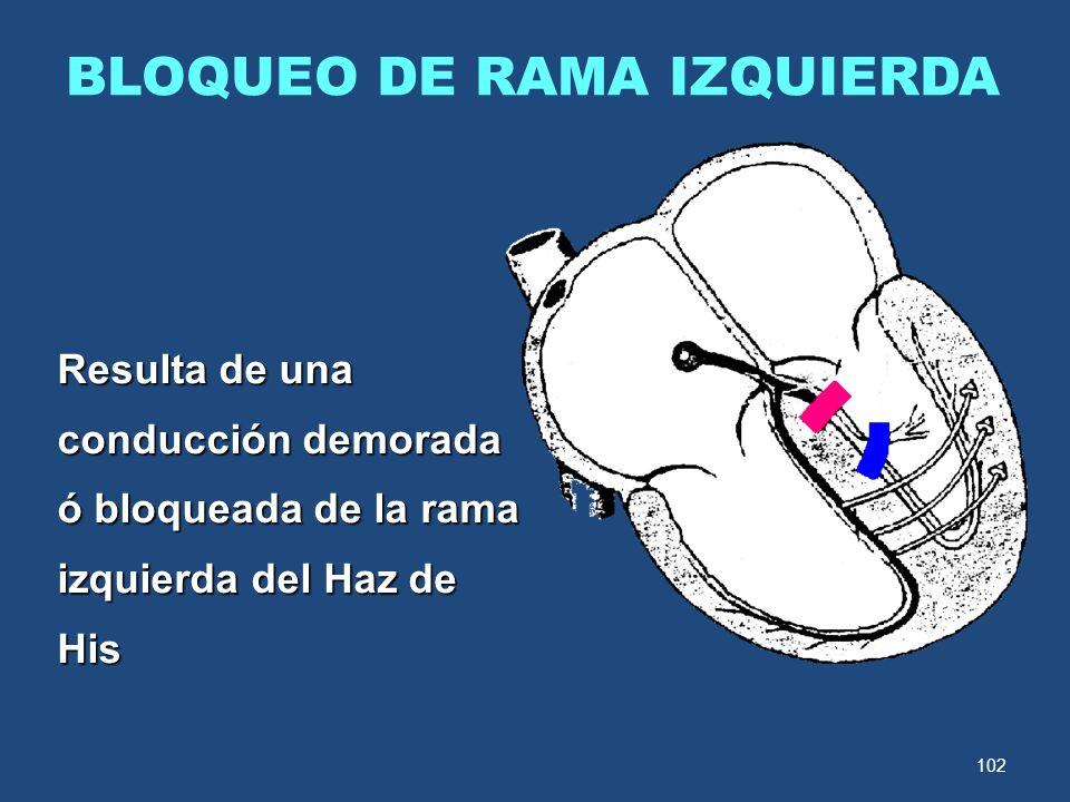 102 BLOQUEO DE RAMA IZQUIERDA Resulta de una conducción demorada ó bloqueada de la rama izquierda del Haz de His