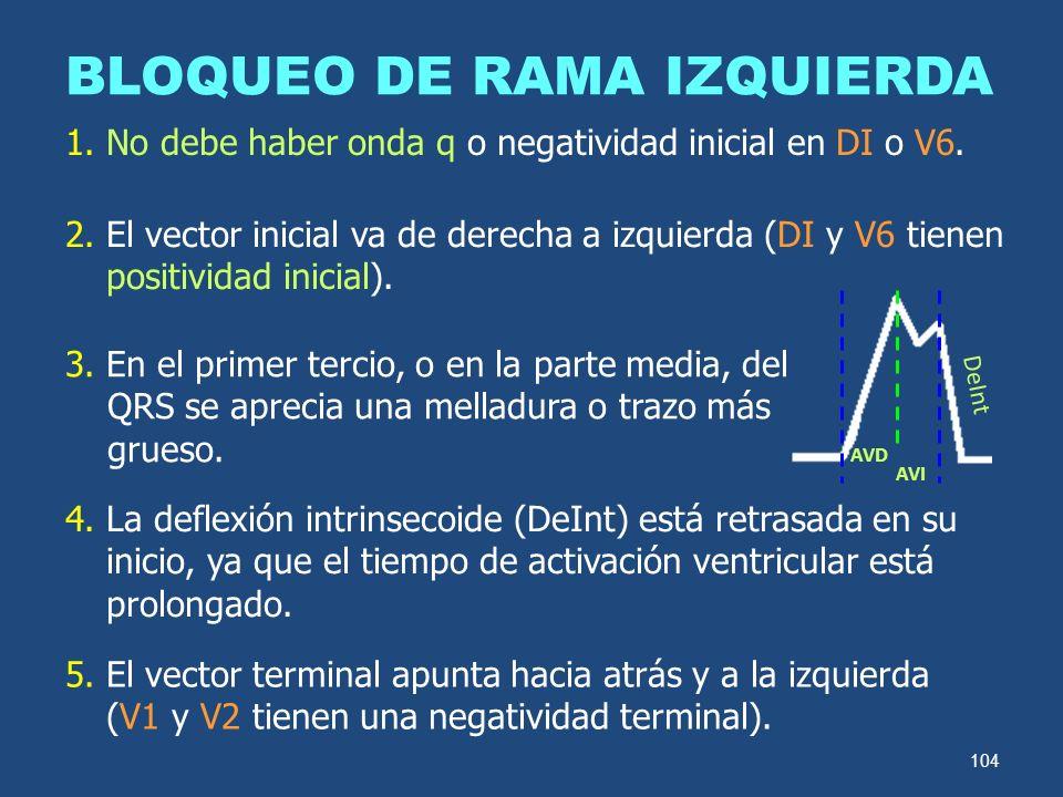 104 BLOQUEO DE RAMA IZQUIERDA 2. El vector inicial va de derecha a izquierda (DI y V6 tienen positividad inicial). 3. En el primer tercio, o en la par