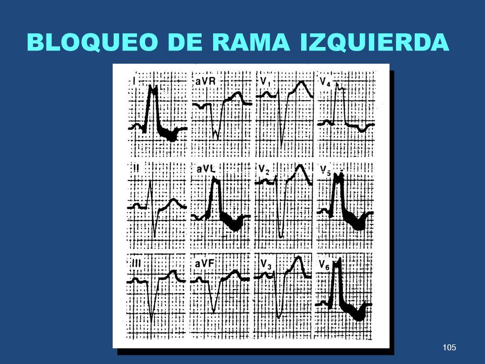 105 BLOQUEO DE RAMA IZQUIERDA