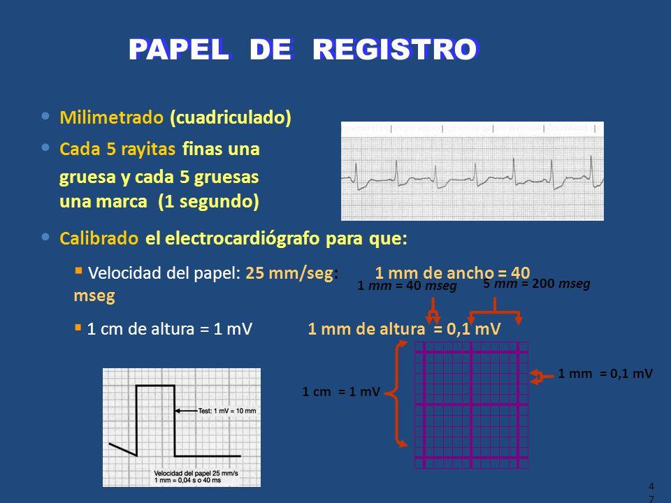 47 Milimetrado (cuadriculado) Cada 5 rayitas finas una gruesa y cada 5 gruesas una marca (1 segundo) Calibrado el electrocardiógrafo para que: Velocid