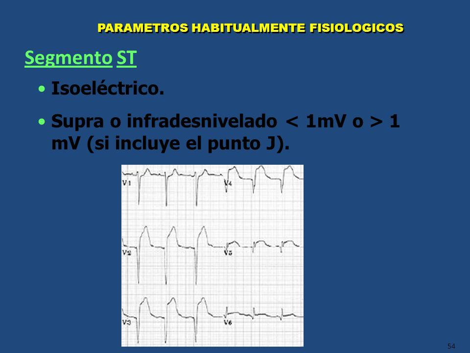 54 PARAMETROS HABITUALMENTE FISIOLOGICOS Isoeléctrico. Supra o infradesnivelado 1 mV (si incluye el punto J). Segmento ST