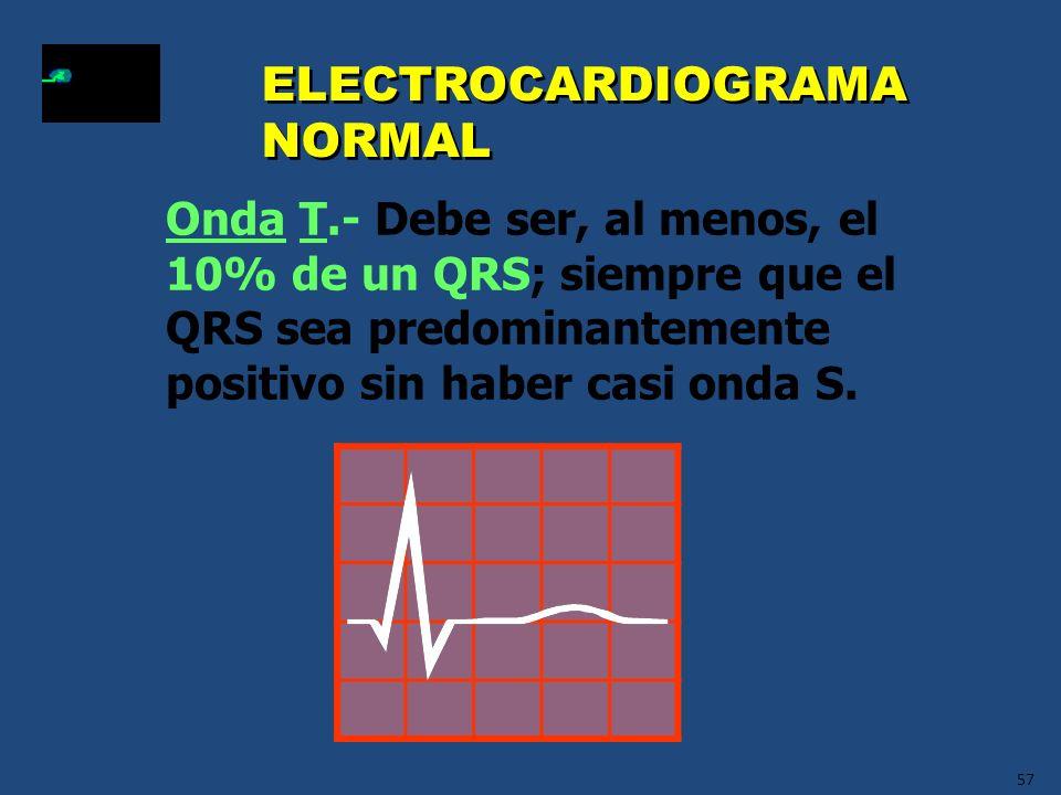 57 ELECTROCARDIOGRAMA NORMAL Onda T.- Debe ser, al menos, el 10% de un QRS; siempre que el QRS sea predominantemente positivo sin haber casi onda S.