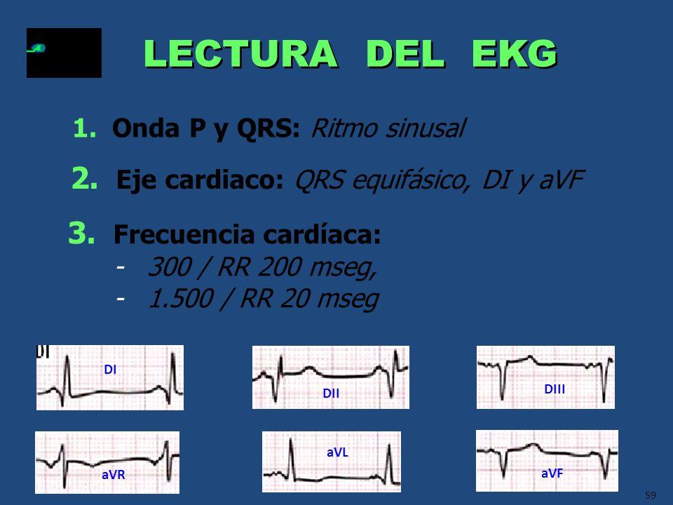 59 LECTURA DEL EKG 2. Eje cardiaco: QRS equifásico, DI y aVF 1. Onda P y QRS: Ritmo sinusal 3. Frecuencia cardíaca: - 300 / RR 200 mseg, - 1.500 / RR
