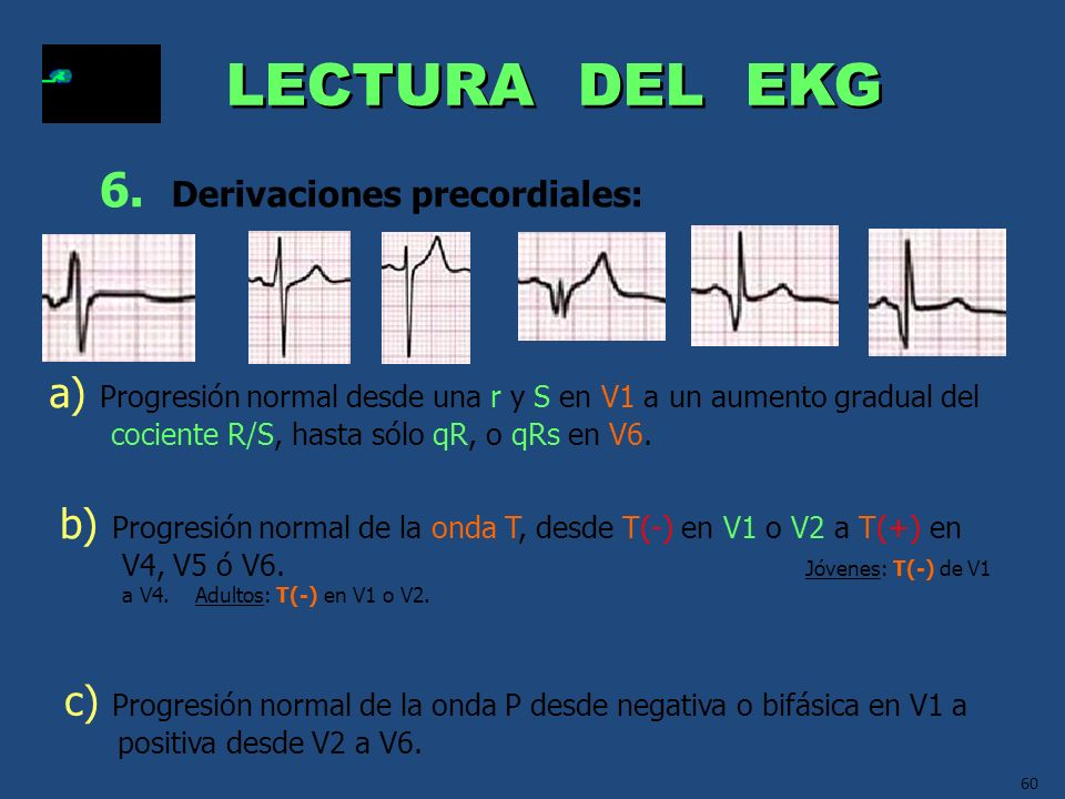 60 LECTURA DEL EKG 6. Derivaciones precordiales: a) Progresión normal desde una r y S en V1 a un aumento gradual del cociente R/S, hasta sólo qR, o qR
