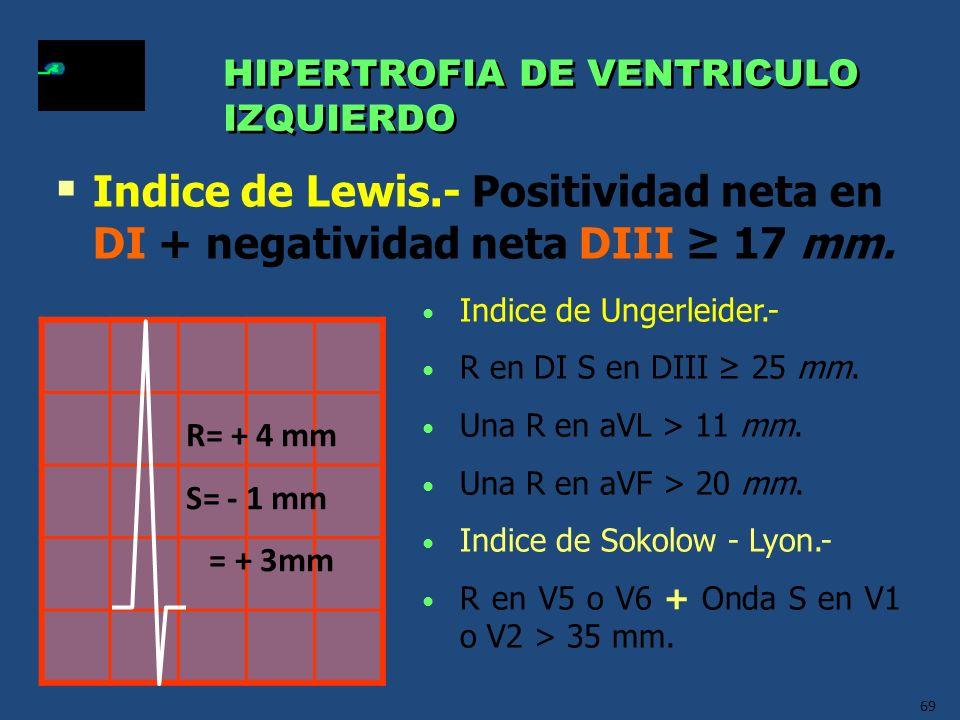 69 HIPERTROFIA DE VENTRICULO IZQUIERDO HIPERTROFIA DE VENTRICULO IZQUIERDO Indice de Ungerleider.- R en DI S en DIII 25 mm. Una R en aVL > 11 mm. Una