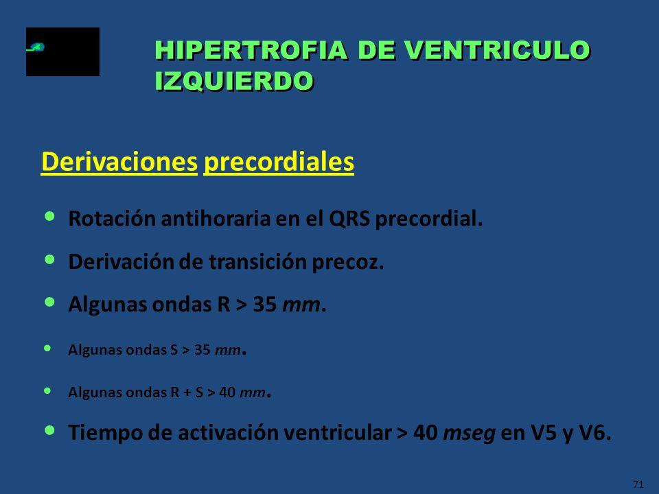 71 HIPERTROFIA DE VENTRICULO IZQUIERDO HIPERTROFIA DE VENTRICULO IZQUIERDO Rotación antihoraria en el QRS precordial. Derivación de transición precoz.