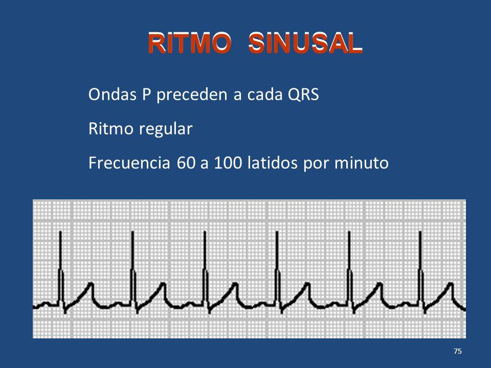 75 RITMO SINUSAL Ondas P preceden a cada QRS Ritmo regular Frecuencia 60 a 100 latidos por minuto