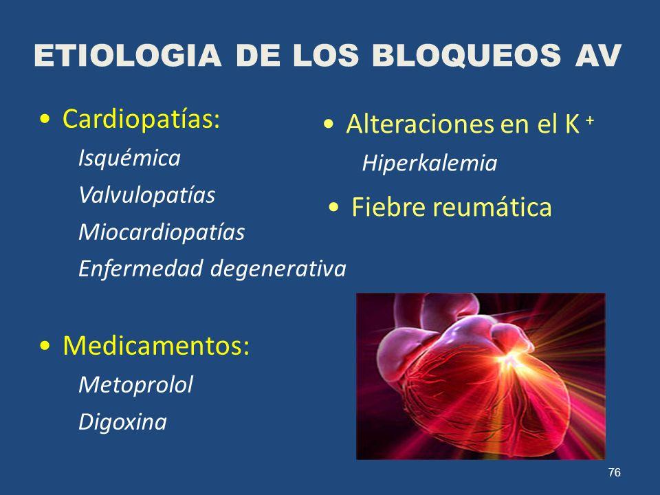 76 ETIOLOGIA DE LOS BLOQUEOS AV Cardiopatías: Isquémica Valvulopatías Miocardiopatías Enfermedad degenerativa Medicamentos: Metoprolol Digoxina Altera