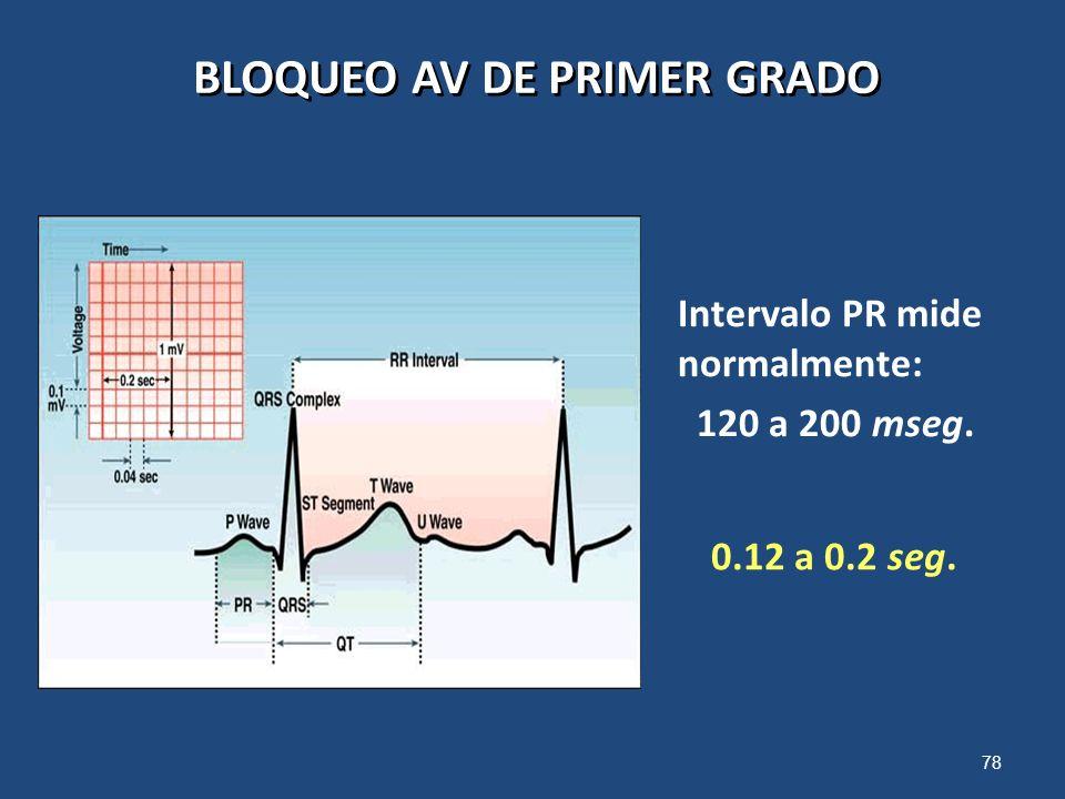 78 BLOQUEO AV DE PRIMER GRADO Intervalo PR mide normalmente: 120 a 200 mseg. 0.12 a 0.2 seg.