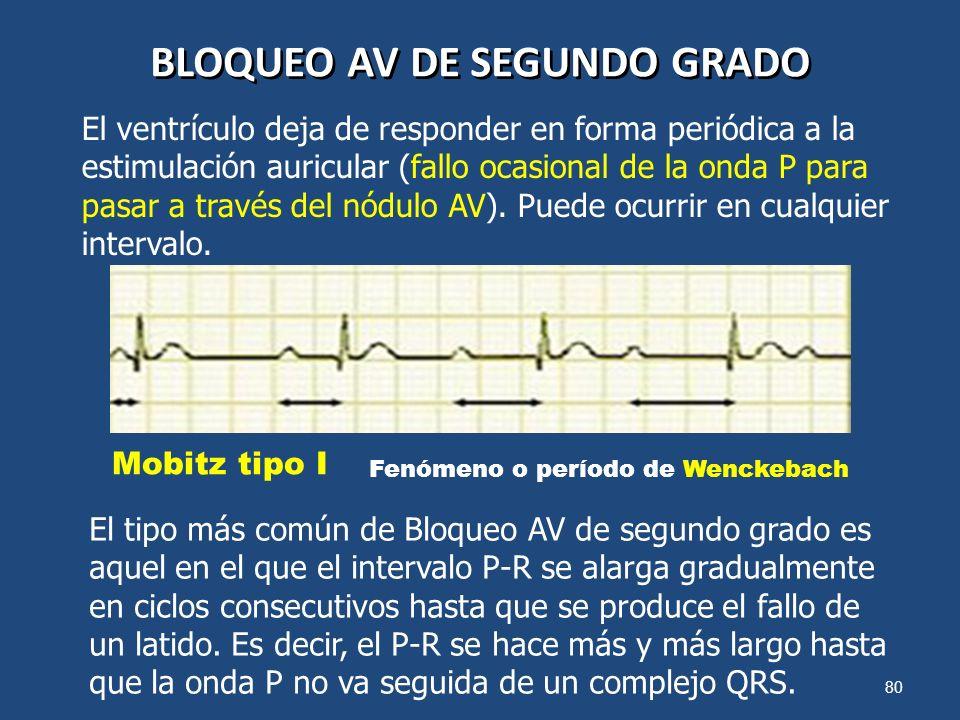 80 BLOQUEO AV DE SEGUNDO GRADO El ventrículo deja de responder en forma periódica a la estimulación auricular (fallo ocasional de la onda P para pasar