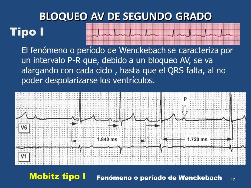 81 BLOQUEO AV DE SEGUNDO GRADO El fenómeno o período de Wenckebach se caracteriza por un intervalo P-R que, debido a un bloqueo AV, se va alargando co