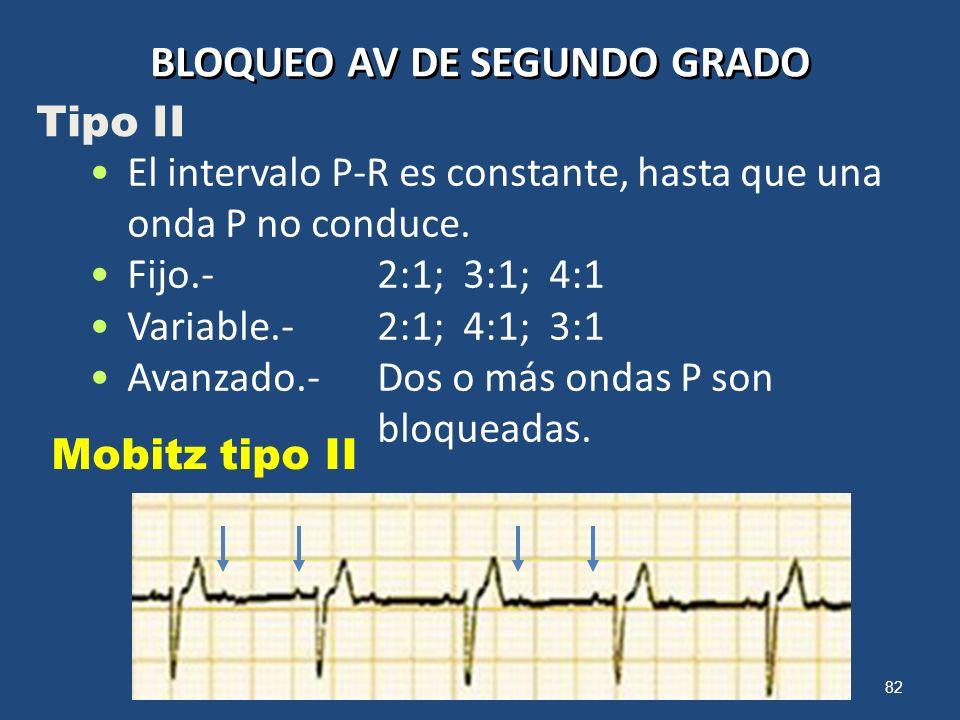 82 BLOQUEO AV DE SEGUNDO GRADO Mobitz tipo II El intervalo P-R es constante, hasta que una onda P no conduce. Fijo.-2:1; 3:1; 4:1 Variable.-2:1; 4:1;