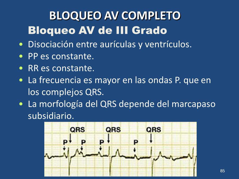 85 BLOQUEO AV COMPLETO Disociación entre aurículas y ventrículos. PP es constante. RR es constante. La frecuencia es mayor en las ondas P. que en los