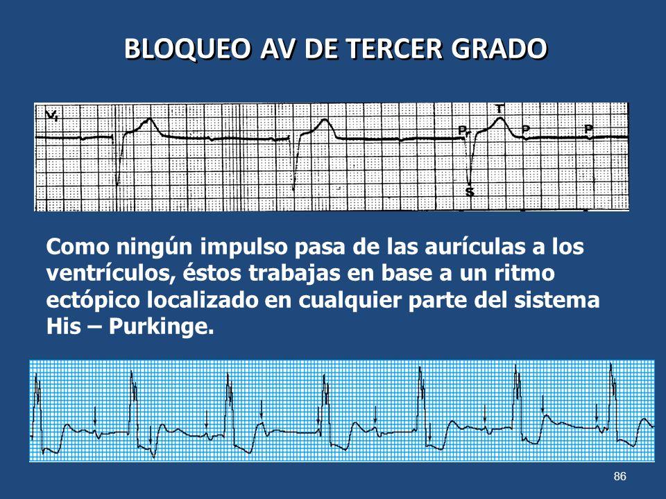 86 BLOQUEO AV DE TERCER GRADO Como ningún impulso pasa de las aurículas a los ventrículos, éstos trabajas en base a un ritmo ectópico localizado en cu