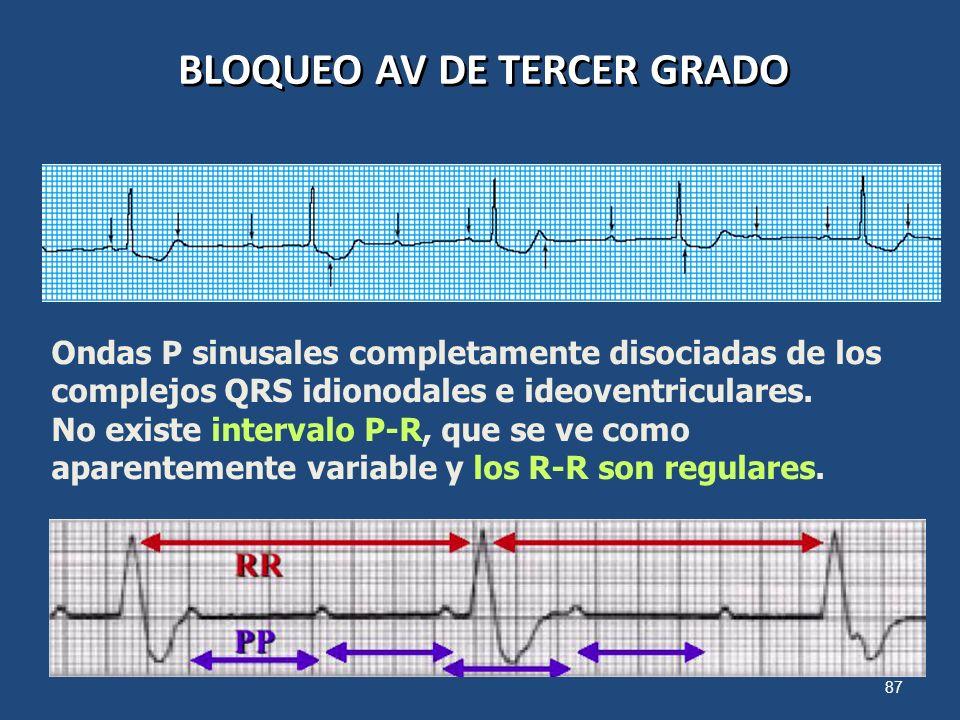 87 BLOQUEO AV DE TERCER GRADO Ondas P sinusales completamente disociadas de los complejos QRS idionodales e ideoventriculares. No existe intervalo P-R