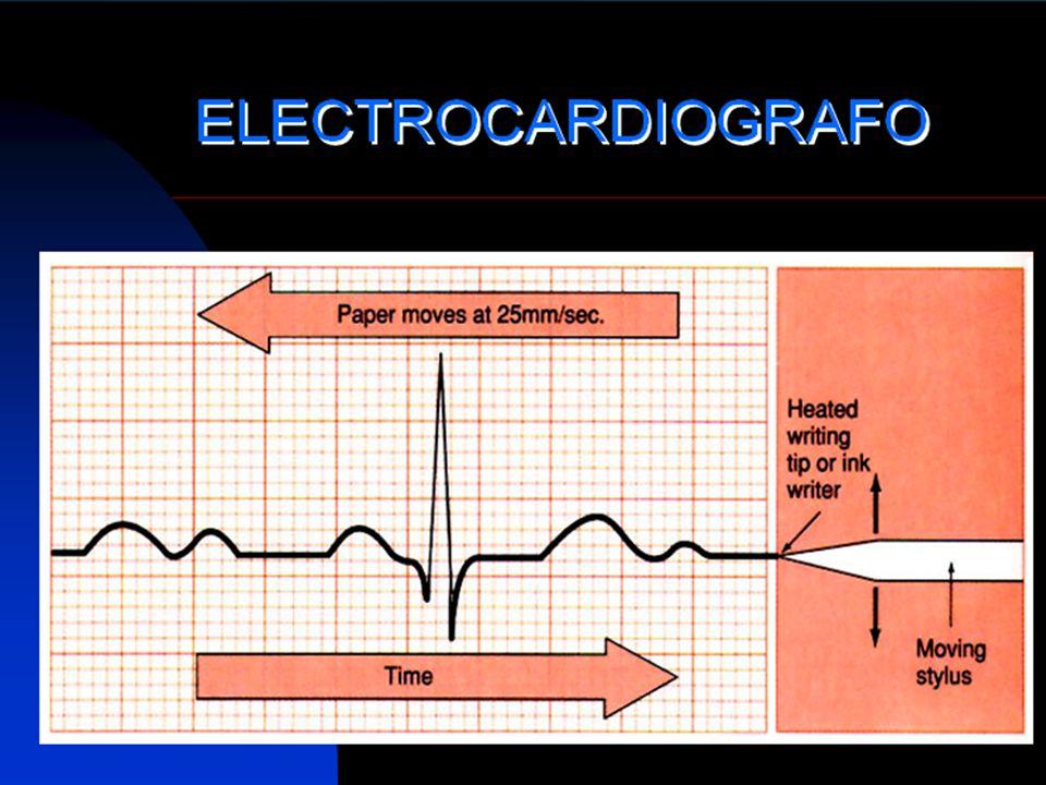 60 LECTURA DEL EKG 6.