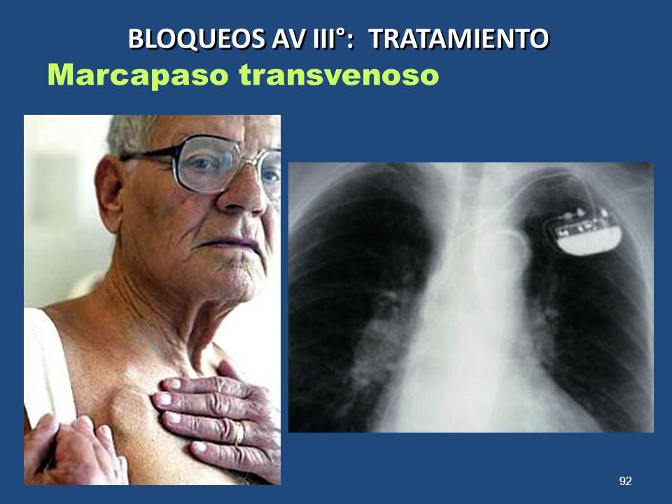 92 BLOQUEOS AV III°: TRATAMIENTO Marcapaso transvenoso