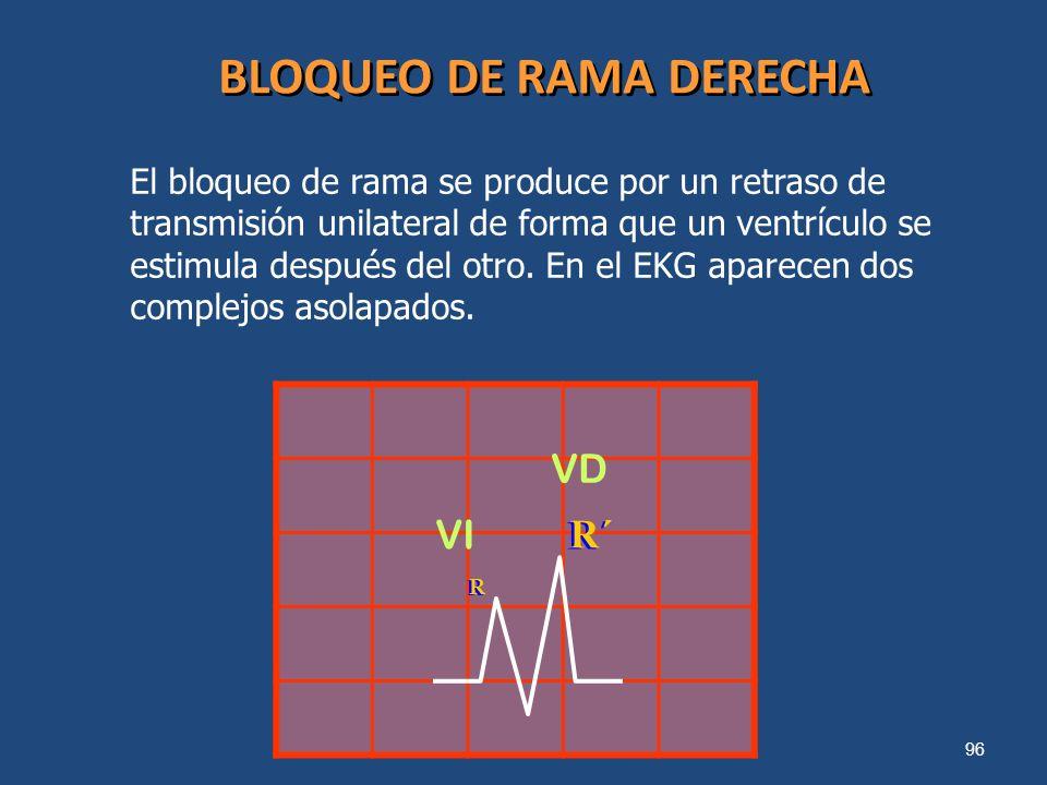 96 BLOQUEO DE RAMA DERECHA El bloqueo de rama se produce por un retraso de transmisión unilateral de forma que un ventrículo se estimula después del o