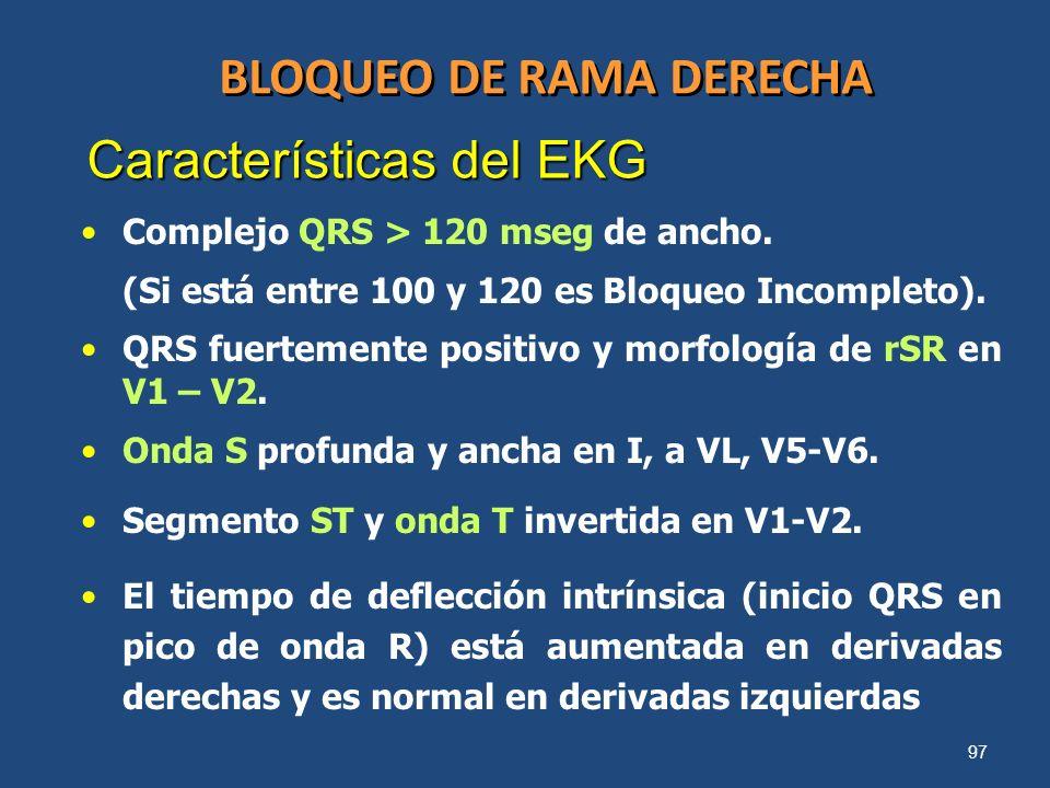 97 BLOQUEO DE RAMA DERECHA Complejo QRS > 120 mseg de ancho. (Si está entre 100 y 120 es Bloqueo Incompleto). QRS fuertemente positivo y morfología de