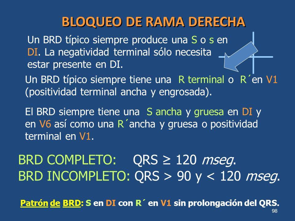 98 BLOQUEO DE RAMA DERECHA Un BRD típico siempre produce una S o s en DI. La negatividad terminal sólo necesita estar presente en DI. Un BRD típico si