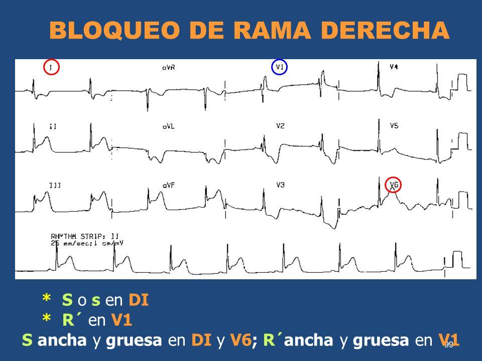 99 BLOQUEO DE RAMA DERECHA * S o s en DI * R´ en V1 S ancha y gruesa en DI y V6; R´ancha y gruesa en V1