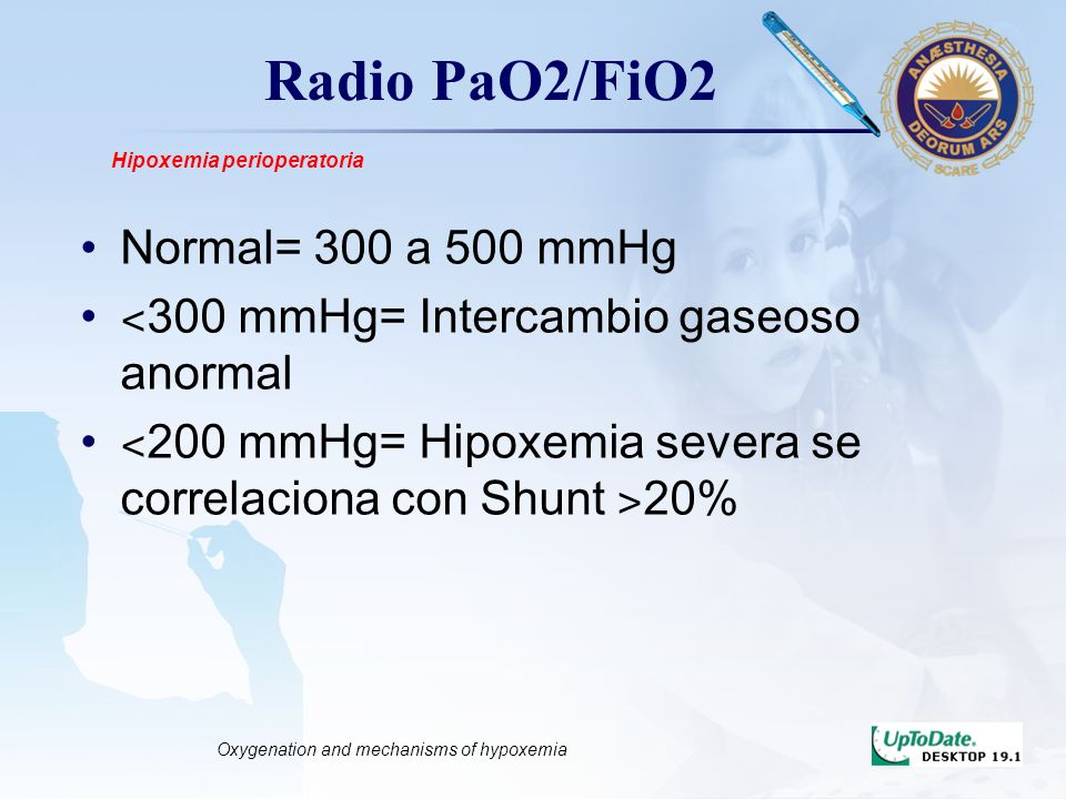 LOGO Radio PaO2/FiO2 Normal= 300 a 500 mmHg ˂ 300 mmHg= Intercambio gaseoso anormal ˂ 200 mmHg= Hipoxemia severa se correlaciona con Shunt ˃ 20% Hipoxemia perioperatoria Oxygenation and mechanisms of hypoxemia