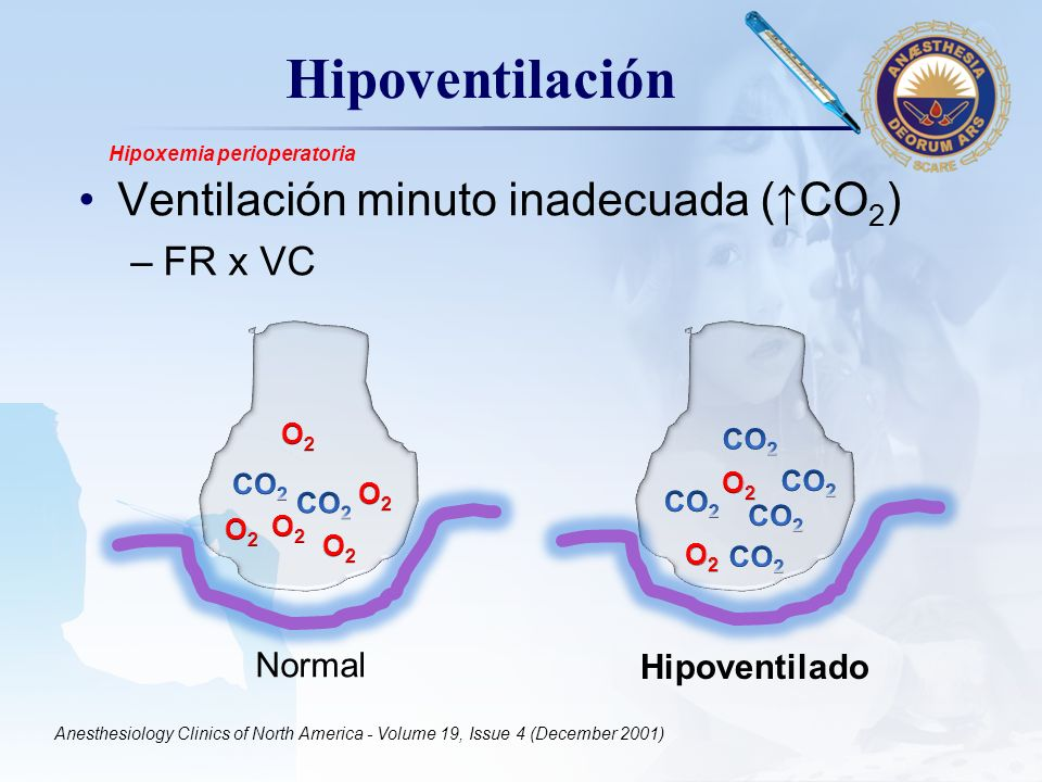 LOGO Hipoventilación Ventilación minuto inadecuada (CO 2 ) –FR x VC Normal Anesthesiology Clinics of North America - Volume 19, Issue 4 (December 2001) Hipoxemia perioperatoria Hipoventilado