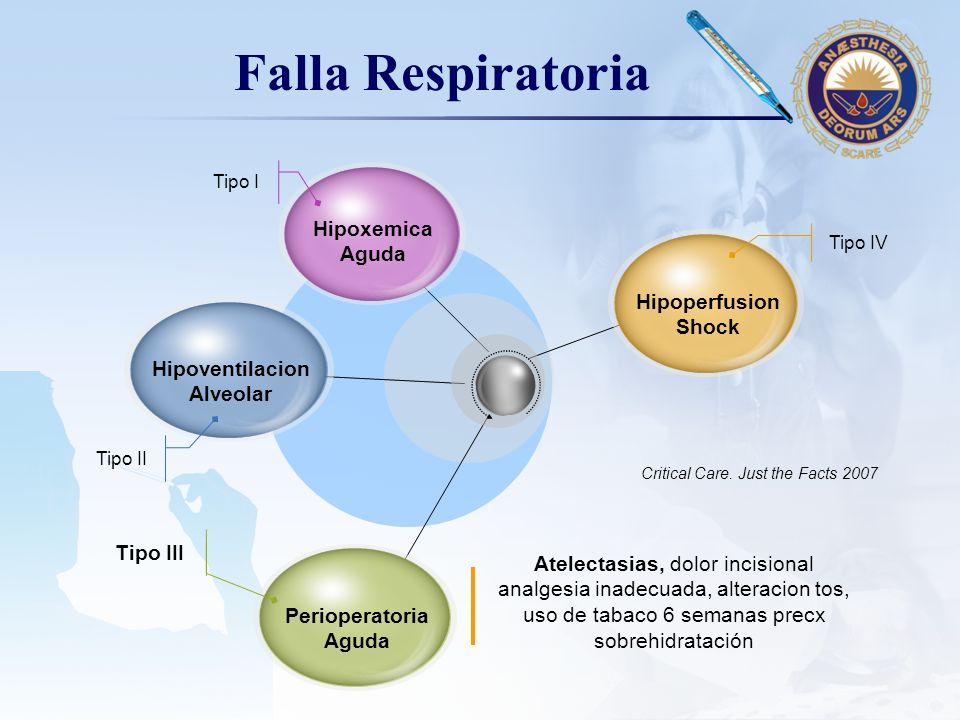 LOGO Falla Respiratoria Hipoxemica Aguda Hipoventilacion Alveolar Perioperatoria Aguda Hipoperfusion Shock Tipo IV Tipo I Tipo II Tipo III Atelectasia