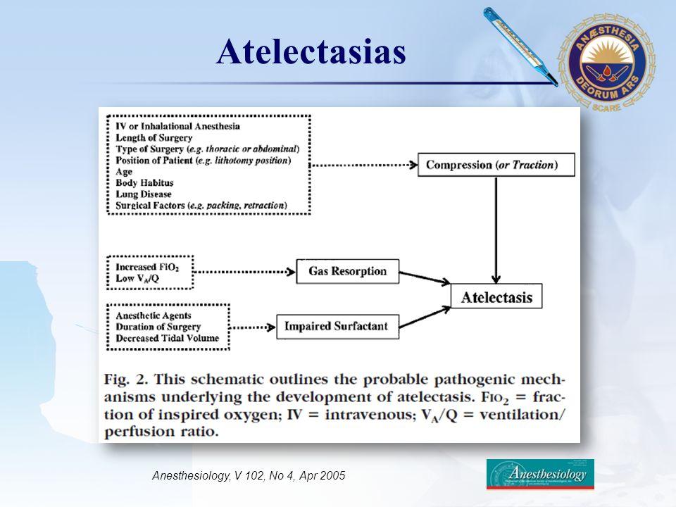 LOGO Atelectasias Anesthesiology, V 102, No 4, Apr 2005