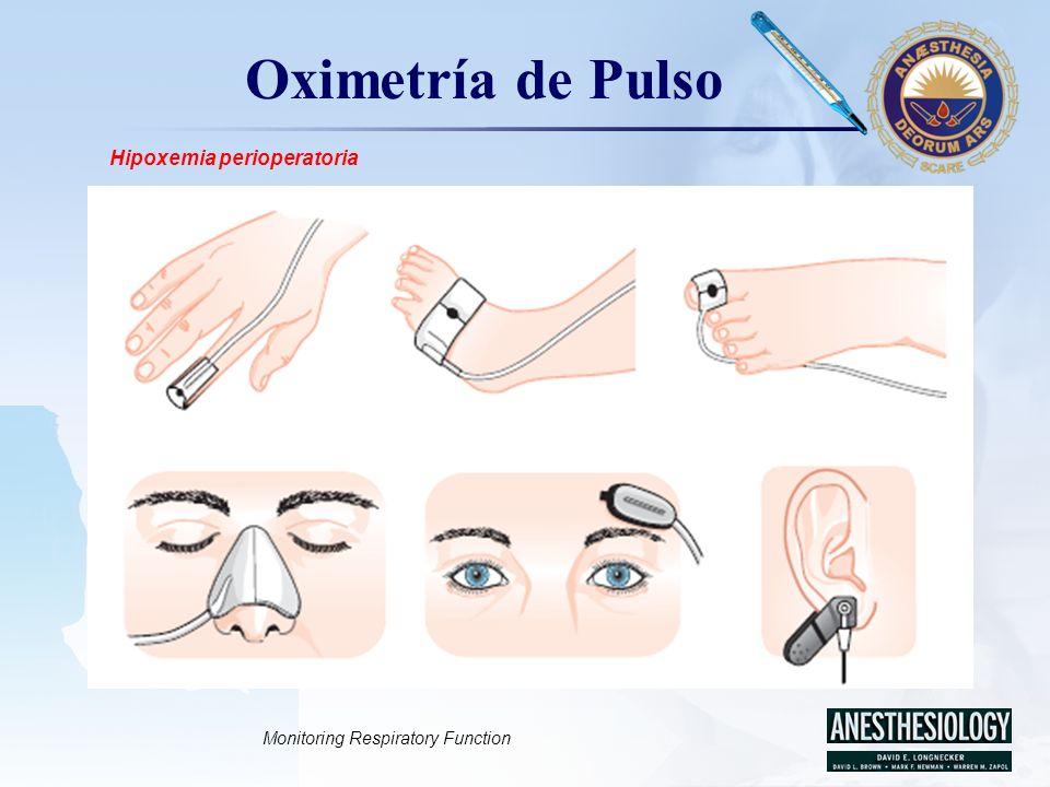 LOGO Oximetría de Pulso Hipoxemia perioperatoria Monitoring Respiratory Function