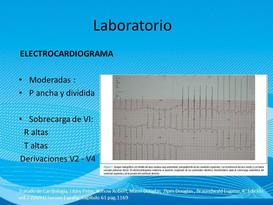 ELECTROCARDIOGRAMA Moderadas : P ancha y dividida Sobrecarga de VI: R altas T altas Derivaciones V2 - V4 Tratado de Cardiología, Libby Peter, Bonow Ro