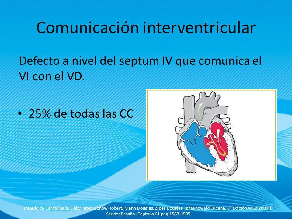 Comunicación interventricular Defecto a nivel del septum IV que comunica el VI con el VD. 25% de todas las CC Tratado de Cardiología, Libby Peter, Bon