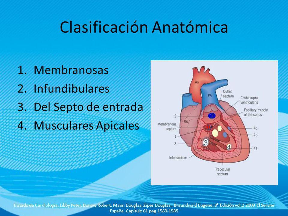Clasificación Anatómica 1.Membranosas 2.Infundibulares 3.Del Septo de entrada 4.Musculares Apicales Tratado de Cardiología, Libby Peter, Bonow Robert,