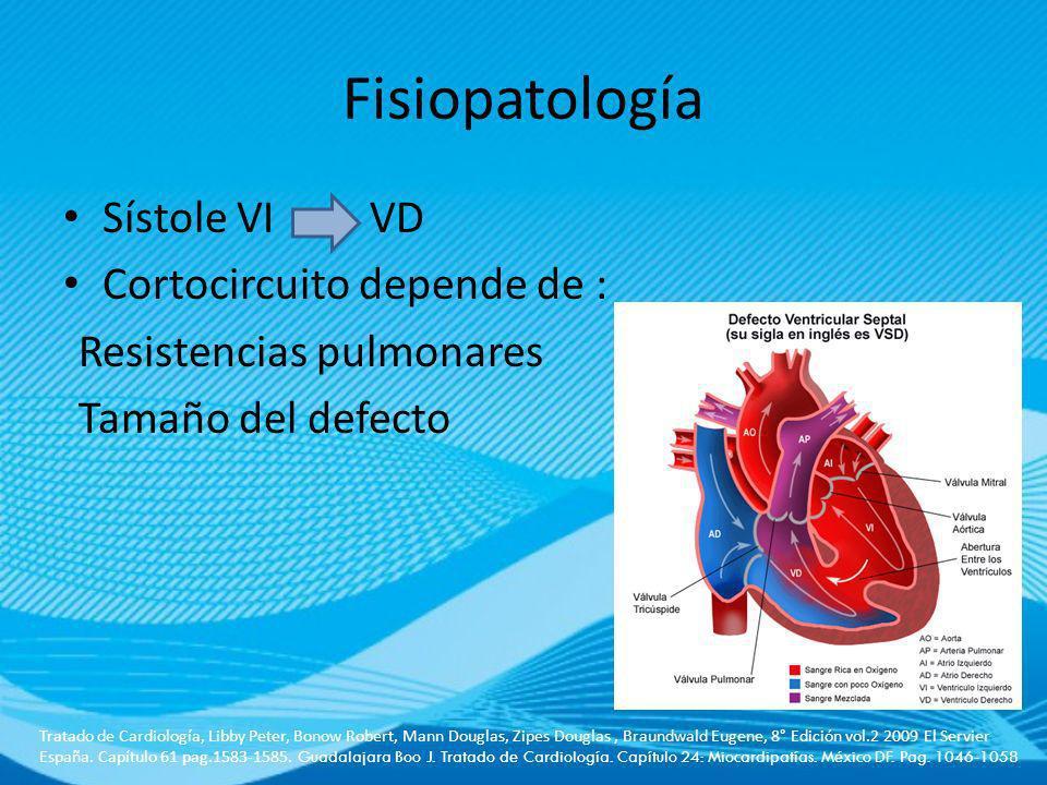 Fisiopatología Sístole VI VD Cortocircuito depende de : Resistencias pulmonares Tamaño del defecto Tratado de Cardiología, Libby Peter, Bonow Robert,