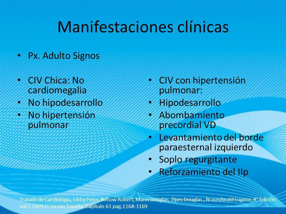 Px. Adulto Signos CIV Chica: No cardiomegalia No hipodesarrollo No hipertensión pulmonar CIV con hipertensión pulmonar: Hipodesarrollo Abombamiento pr