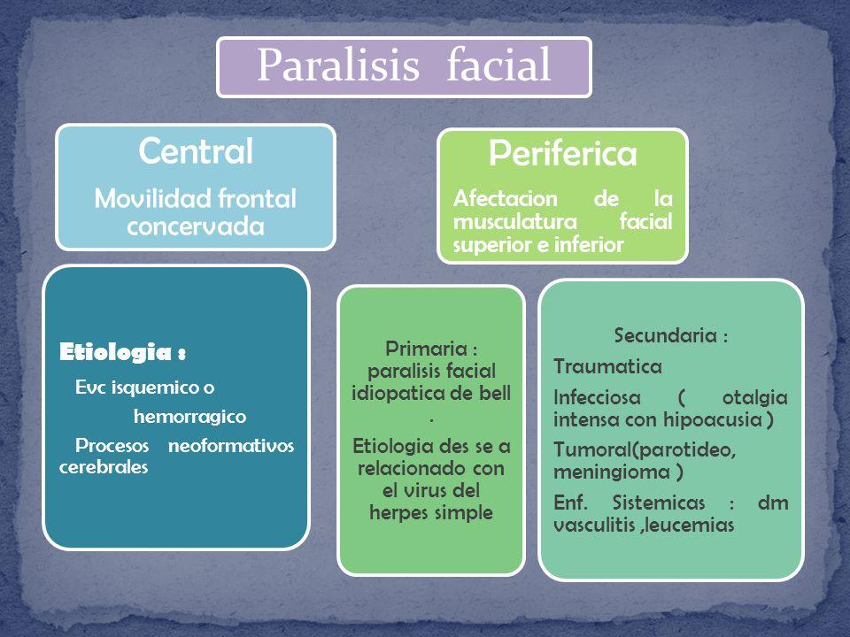 Paralisis facial Periferica Afectacion de la musculatura facial superior e inferior Primaria : paralisis facial idiopatica de bell.