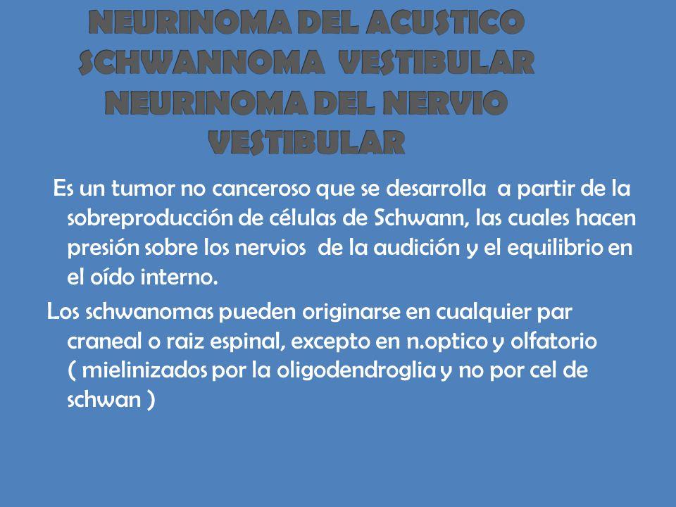 Es un tumor no canceroso que se desarrolla a partir de la sobreproducción de células de Schwann, las cuales hacen presión sobre los nervios de la audición y el equilibrio en el oído interno.