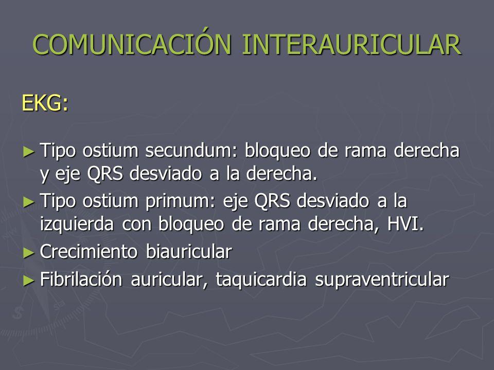 COMUNICACIÓN INTERAURICULAR EKG: Tipo ostium secundum: bloqueo de rama derecha y eje QRS desviado a la derecha. Tipo ostium secundum: bloqueo de rama