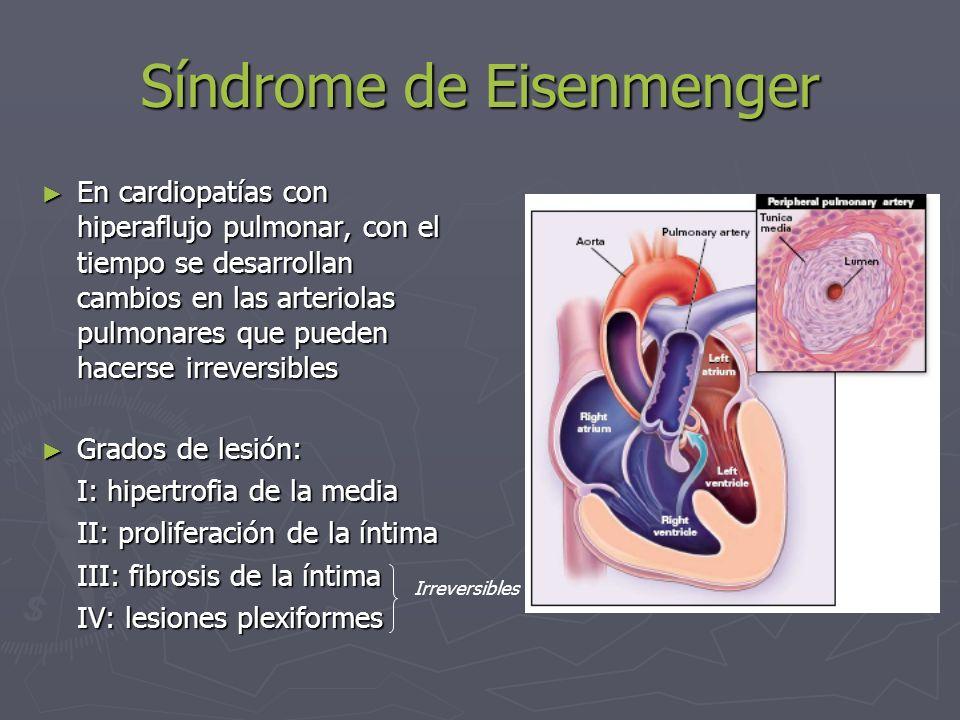 Síndrome de Eisenmenger En cardiopatías con cortocircuito I-D, conduce a la inversión del flujo hacia D-I Aparece: cianosis y clínica de ICC.